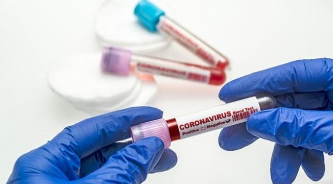9 Eylül 2020 corona virüs tablosu
