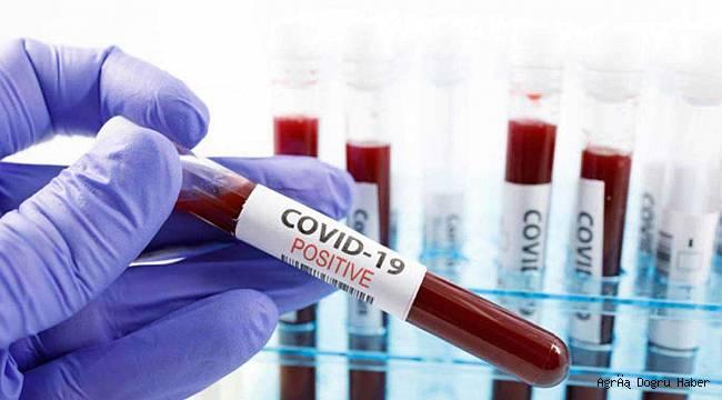 Türkiye'de Covid-19 nedeni ile 97 kişi vefat etti, 7 bin 763 yeni vaka tespit edildi